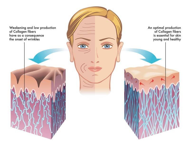 Collagen for skin regeneration