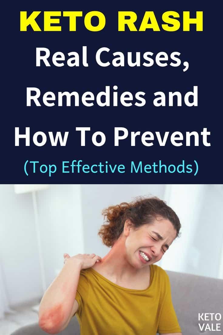 Keto Rash: Causes and Remedies